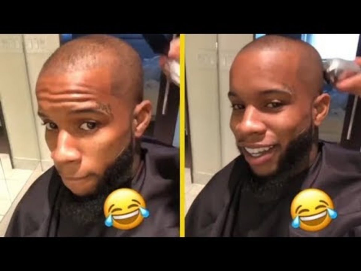 Rapper Tory Lanez Unveils Hair Transplant From 'Non-Black' Donor: Now Has 'GOOD HAIR'!!